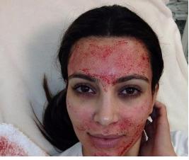 Kim Kardashian is one celebrity who has done the procedure